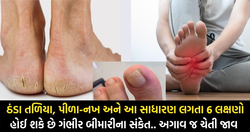 પગના તળિયા પર આ 6 માંથી એક પણ લક્ષણ દેખાય તો ચેતી જાવ, હોય શકે ગંભીર બીમારીના સંકેત.